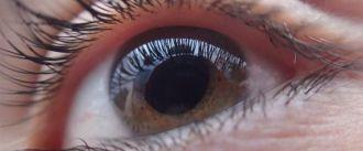Las cataratas en el ojo, 10 años antes por el uso de ordenadores y móviles