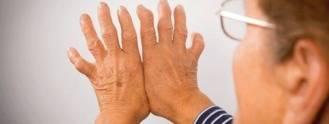 Identifican los primeros pasos hacia la artritis inflamatoria