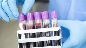 Se confirma la atracción de la Covid-19 por un grupo sanguíneo