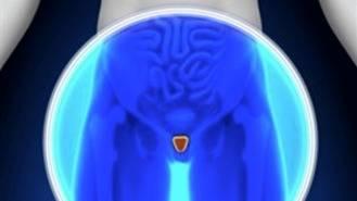 Claves contra la prostatitis: Uno o dos hombres cada 10.000 la sufren